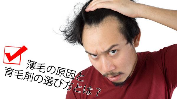 男性の薄毛トップ